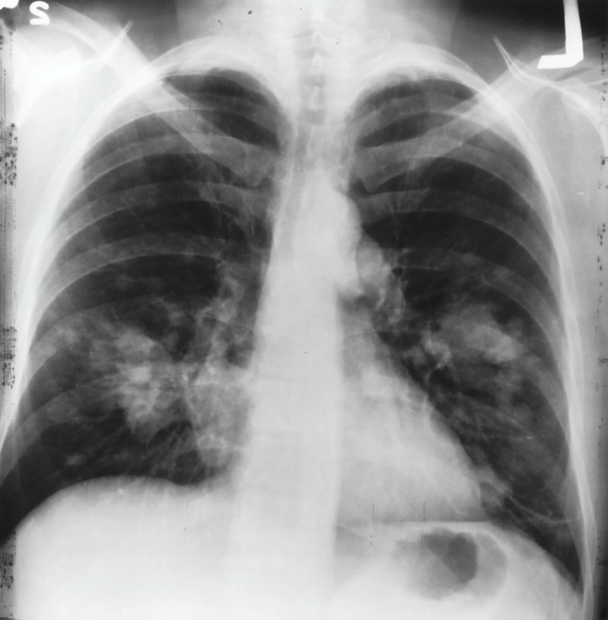 respiratory treatment