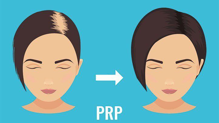 PRP Surgery