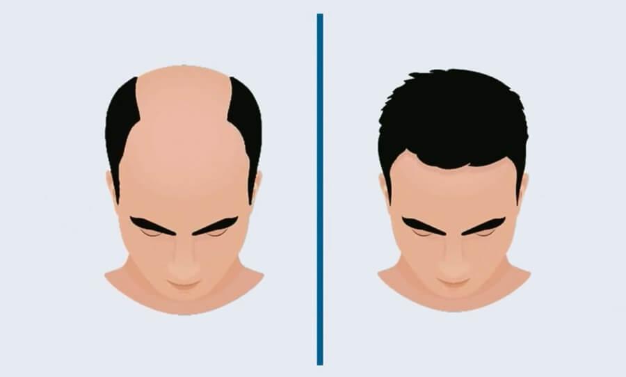 Hair Restoration-Hair Transplant