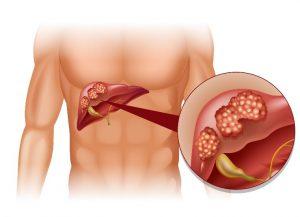 Liver Cancer stages - Nash24x7